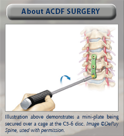 cervical spine surgery nevada, nevada spine surgeon