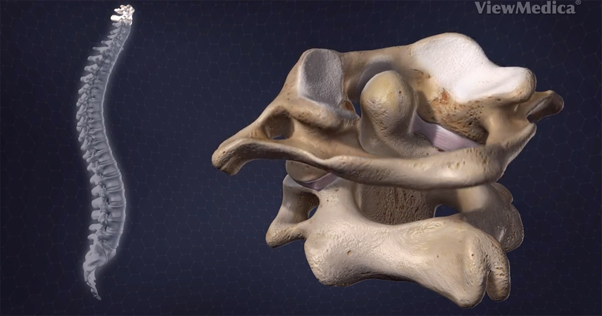What Is A Bone Spur What Treatment Options Are Available
