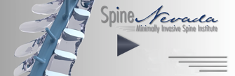 medical animations detailing spine conditions Reno, Sparks, CArson City