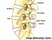 nonfusion treatment for spinal stenosis at SpineNevada, minimally invasive spine institute